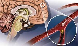 Атеросклероз сосудов головного мозга как причина инсульт-патологии