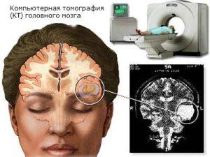 Избыток жидкости в тканях мозга