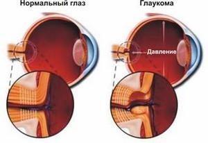 Цены на лазерную коррекцию зрения киев