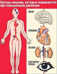 Стадия гипертонической болезни
