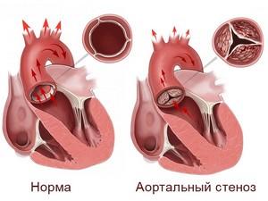 Сужение аорты и сердечных клапанов