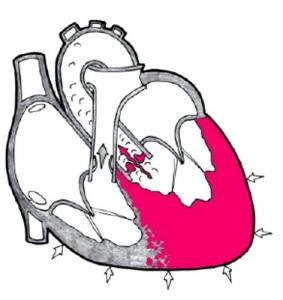 Утолщение левого желудочка