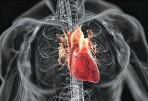 Заболевание сердечно-сосудистой системы