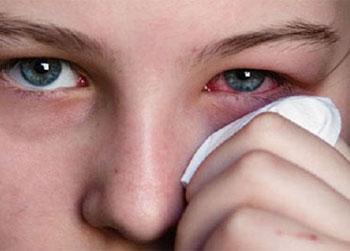 Cлезоточивость глаз