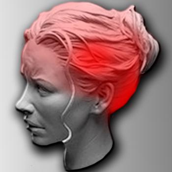 Пример области боли при цефалгии