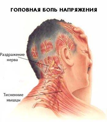Схема поражения мышечных тканей