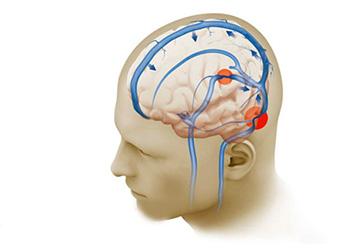 Нарушение церебральных сосудов