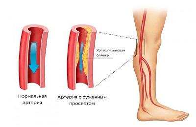 Атеросклероз нижних конечностей