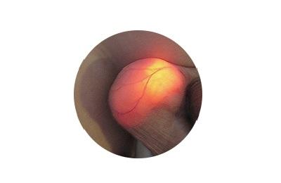 Диафаноскопия