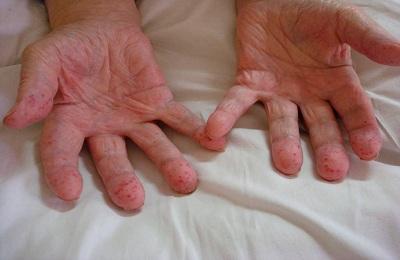 Больные руки