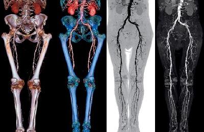 Обследование ног
