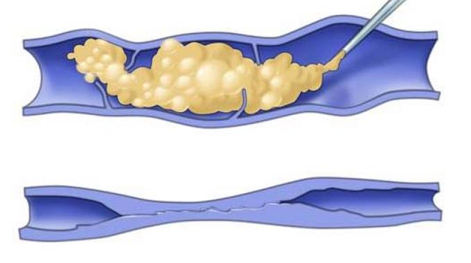 Склерозирование сосудов пеной