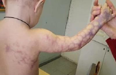 Ангиодисплазия
