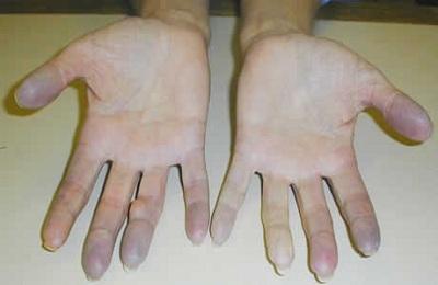 Посинение пальцев