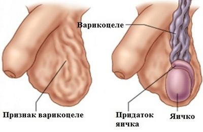 Заболевание мошонки