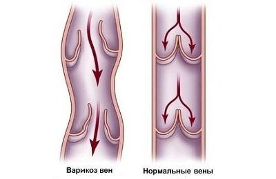 Заболевание вен
