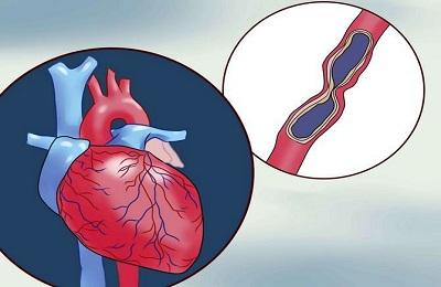 Сердечная стенокардия