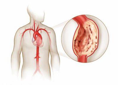 Болезнь сердечных сосудов