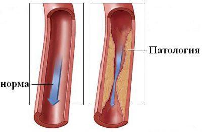 Стеноз артерий