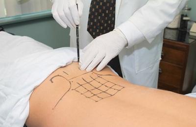 пролотерапия