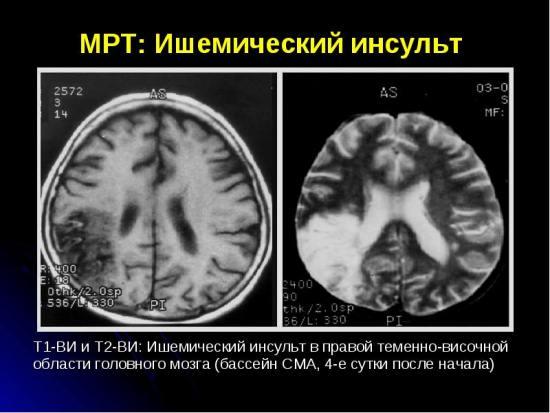 Патология на МРТ